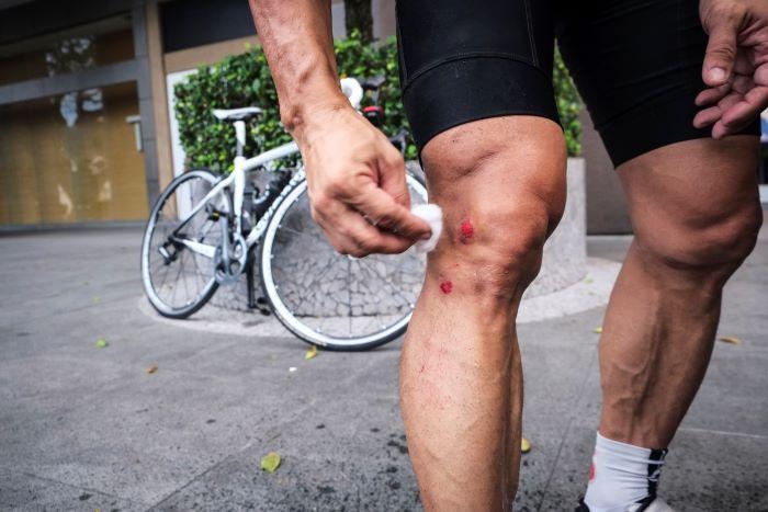 I ciclisti si tolgono i peli per potersi disinfettare le ferite più rapidamente ed efficacemente